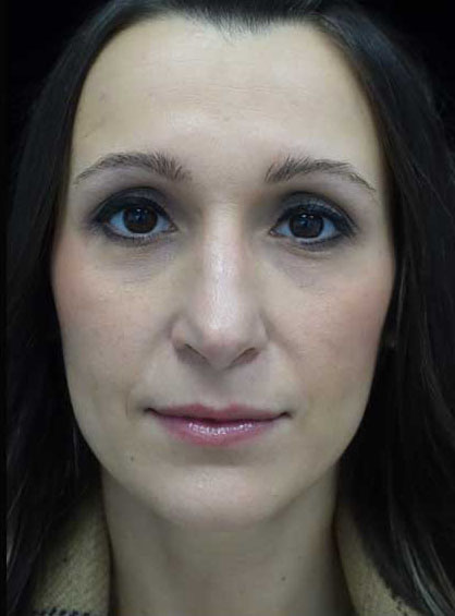 Rhinoplasty Before & After Patient #15195