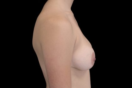 Breast Augmentation (Implants) Before & After Patient #14098