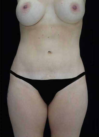 Tummy Tuck Before & After Patient #14992