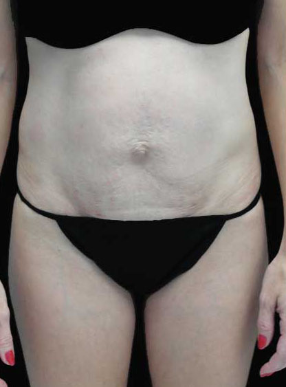 Tummy Tuck Before & After Patient #15062