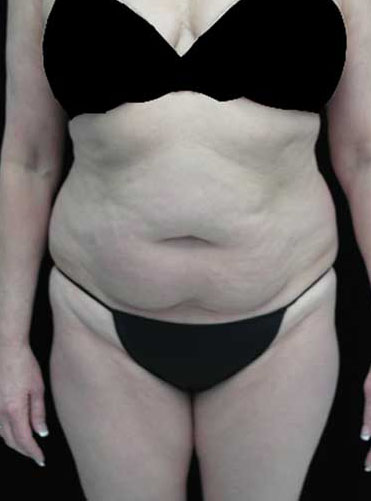 Tummy Tuck Before & After Patient #15085