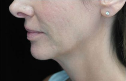 Ultherapy Before & After Patient #14676