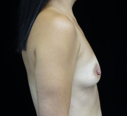 Breast Augmentation (Implants) Before & After Patient #16410