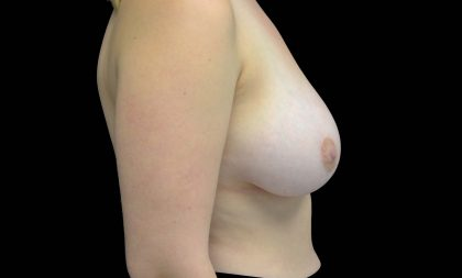Breast Reduction Before & After Patient #16453