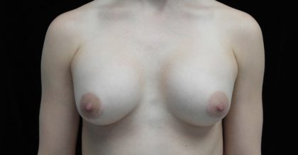 Breast Revision Before & After Patient #16575