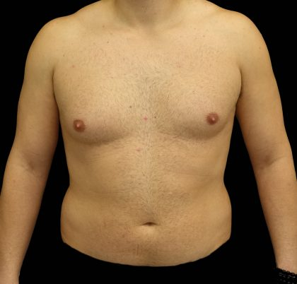 Gynecomastia Before & After Patient #16511