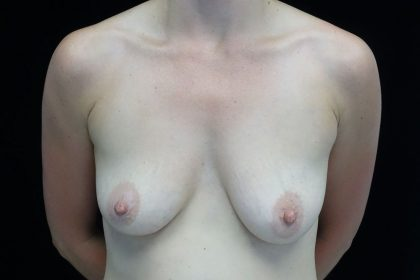 Breast Augmentation (Implants) Before & After Patient #16417