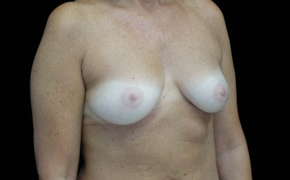 Breast Augmentation (Implants) Before & After Patient #16431