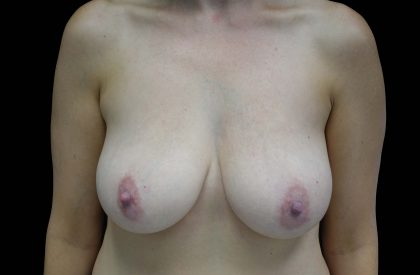 Breast Reduction Before & After Patient #16446