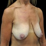 Breast Lift with Implants Before & After Patient #16553