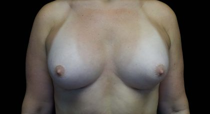 Breast Augmentation (Implants) Before & After Patient #16403