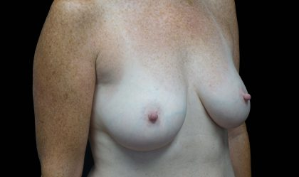 Breast Augmentation (Implants) Before & After Patient #16424