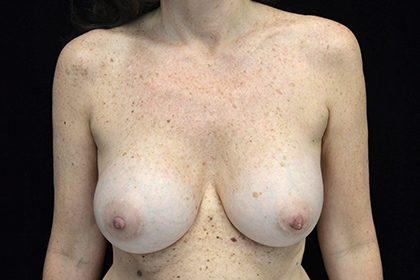 Breast Augmentation (Fat Transfer) Before & After Patient #16483