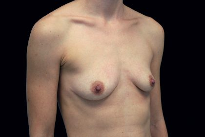 Breast Augmentation (Fat Transfer) Before & After Patient #16490