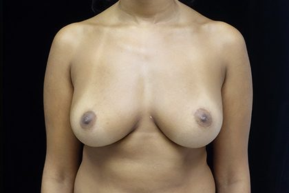 Breast Augmentation (Fat Transfer) Before & After Patient #16497