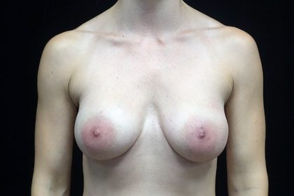 Breast Augmentation (Fat Transfer) Before & After Patient #16504