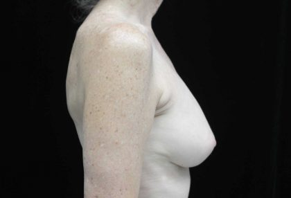 Breast Revision Before & After Patient #16568