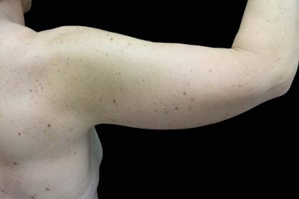 Brachioplasty Before & After Patient #16460