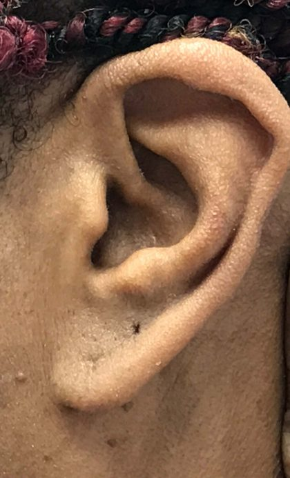 Earlobe Repair Before & After Patient #16473