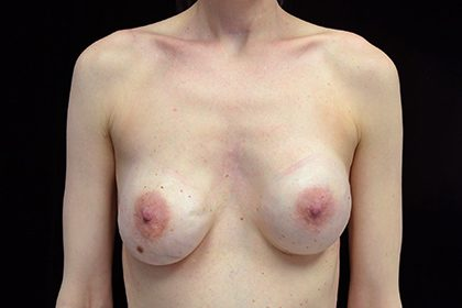 Breast Revision Before & After Patient #16560