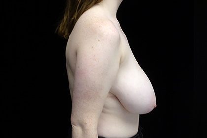 Breast Reduction Before & After Patient #16439
