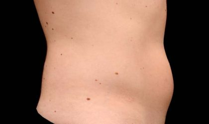 CoolSculpting Before & After Patient #16270