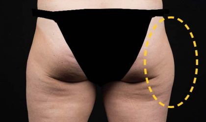 CoolSculpting Before & After Patient #16266