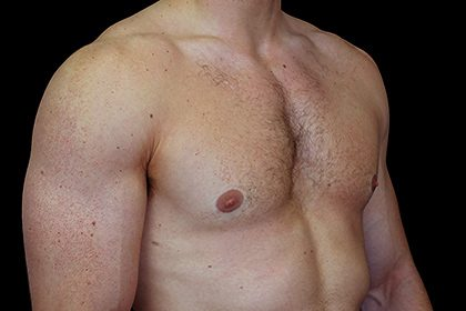Gynecomastia Before & After Patient #16519