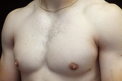 Gynecomastia Before & After Patient #16526