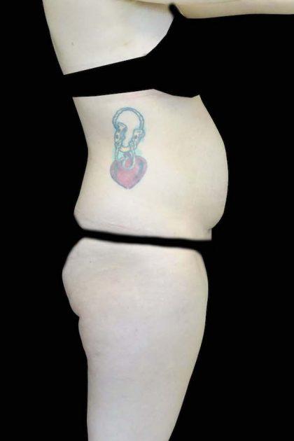 Lipoabdominoplasty Before & After Patient #16546