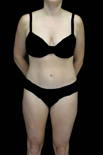 Tummy Tuck Before & After Patient #16587