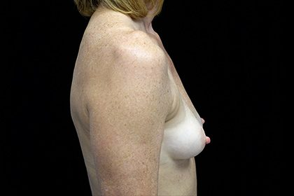 Asymmetric Tuberous Breasts Before & After Patient #16747