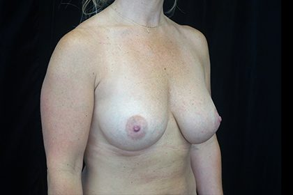 Asymmetric Tuberous Breasts Before & After Patient #16740