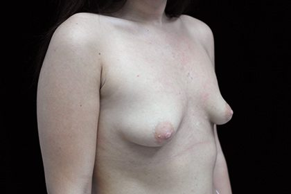 Asymmetric Tuberous Breasts Before & After Patient #16730