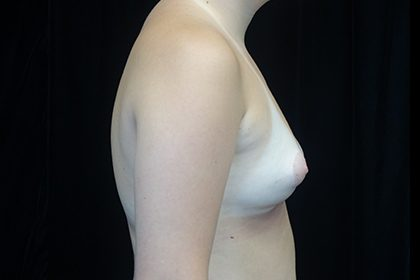 Asymmetric Tuberous Breasts Before & After Patient #16723