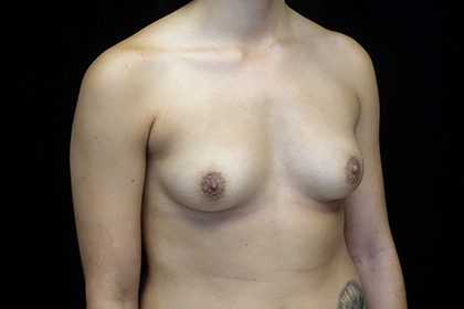 Asymmetric Tuberous Breasts Before & After Patient #16716