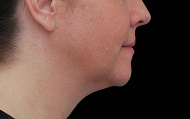 CoolSculpting Before & After Patient #16814