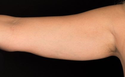 CoolSculpting Before & After Patient #16826