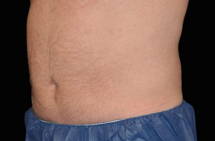 CoolSculpting Before & After Patient #16825
