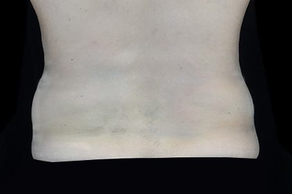 CoolSculpting Before & After Patient #16829