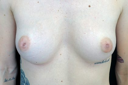 Nipple Inversion Before & After Patient #16857