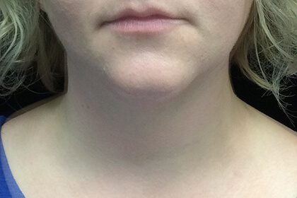 Kybella Before & After Patient #16852