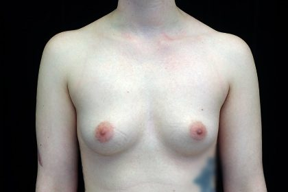 Breast Augmentation (Fat Transfer) Before & After Patient #17011
