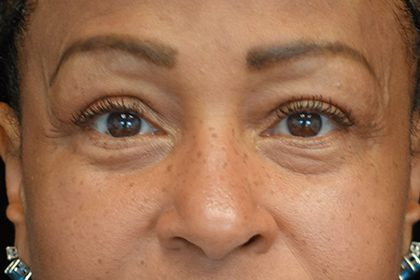 Blepharoplasty Before & After Patient #16995