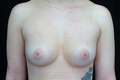 Breast Augmentation (Fat Transfer) Before & After Patient #16918