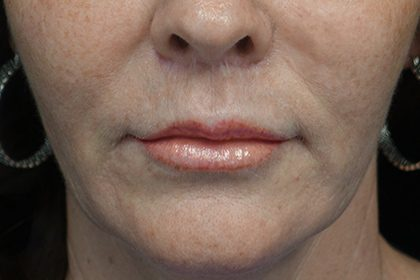 Lip Lift Before & After Patient #17000