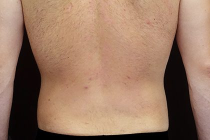 Liposuction Before & After Patient #17003