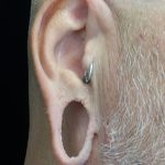 Earlobe Repair Before & After Patient #16990