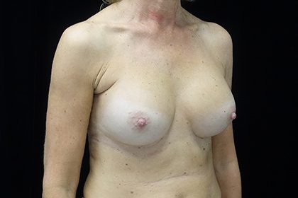 Breast Augmentation (Implants) Before & After Patient #17185