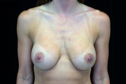 Breast Augmentation (Implants) Before & After Patient #17164